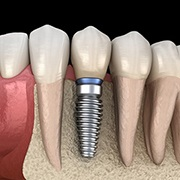 dental implant post with crown in the bottom jaw