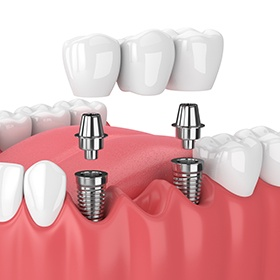 two dental implant posts supporting a dental bridge