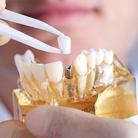 dentist placing a crown into a dental implant in a model of the jaw