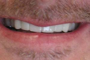 Brilliant white smile after treatment