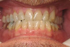 Yellow smile before treatment