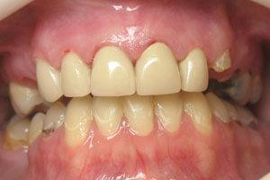Healthy smile and replaced tooth structure