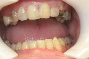Decayed and missing teeth before treatment