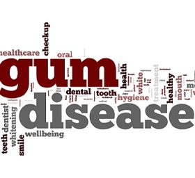 Words at dentist relating to gum disease.