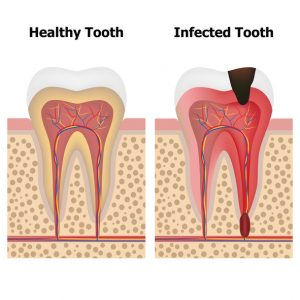 Good oral hygiene is vital for many reasons, including looking good. If you don't take care of your teeth, you could end up needing root canal therapy in Goode.